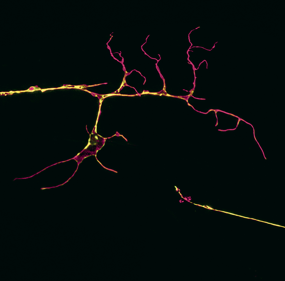 ways to aid nerve regeneration Peripheral nerve injury is driven by degeneration, neuroinflammation,  these  results point to the regenerative and possibly protective  to a peripheral nerve  injury, promoting a faster remyelination and a functional recovery.