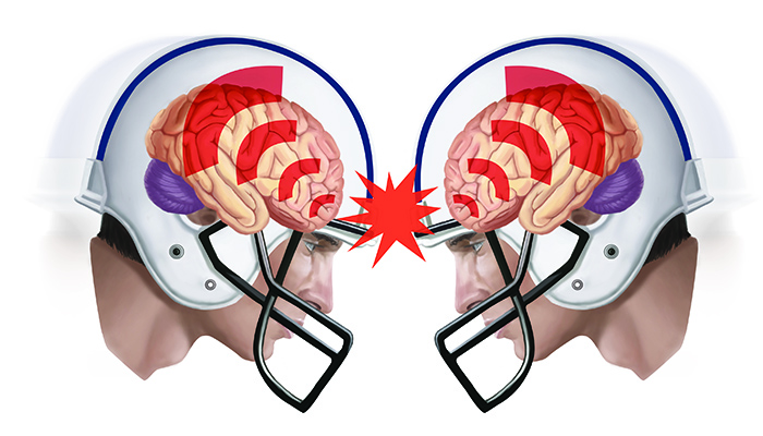 Concussions Are Brain Injuries Sit Your >> Do Helmets Protect Against Concussion Queensland Brain Institute