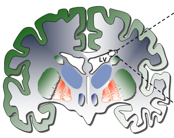 Adult neurogenesis queensland brain institute university of a coronal view of the adult human brain shows the lateral ventricles lv and the subventricular zone arrows where adult neurogenesis occurs ccuart Images