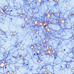 QBI researcher Dr Victor Anggono has won an award for his image of neuron growth