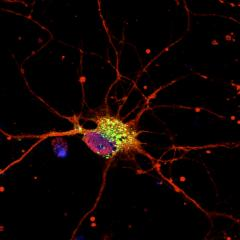 QBI research has identified the specific cause of a rare form of epilepsy in babies.