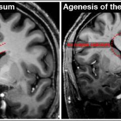 Childhood brain disorders - Queensland Brain Institute