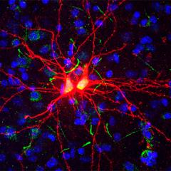 Emotion processing region produces new adult brain cells