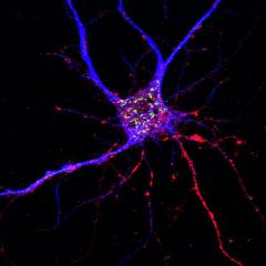 Stopping enzyme could launch two-pronged attack on Alzheimer's
